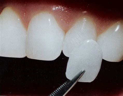 dentist porcelin teeth picture 2