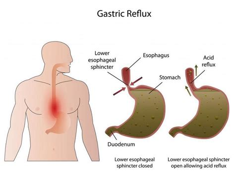 gall bladder acid reflux severe gerd surgery cure for picture 3