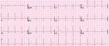 abnormal ekg dizziness high blood pressure picture 12