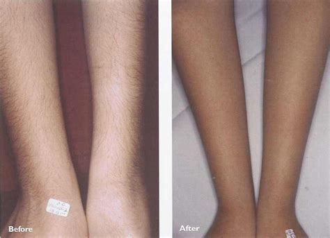 forearm hair removal picture 14