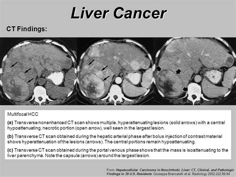 are lesions on the liver serious or cancer picture 8