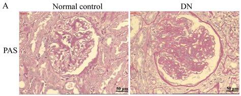decreased el and bladder tone picture 5
