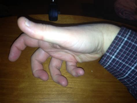 causes for muscle cramps in hands picture 8