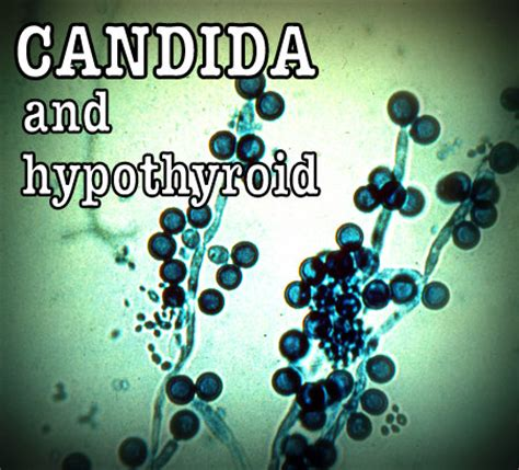 candida and thyroid picture 5