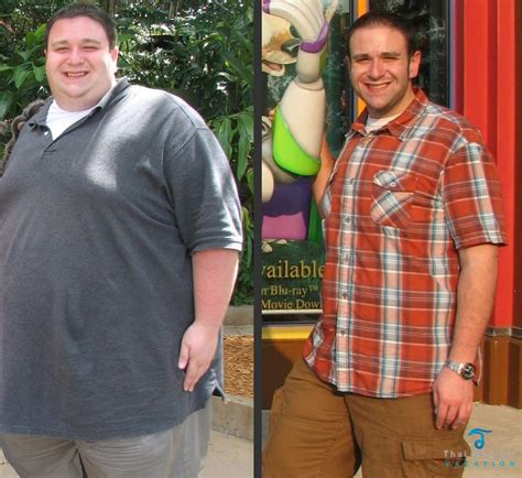 weight loss operation picture 6