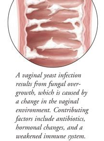 symptoms and causes of vaginal yeast infection picture 13