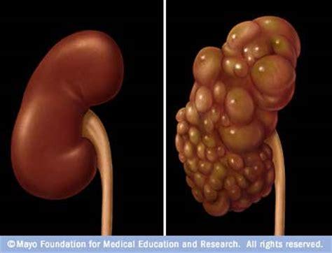 liver mri cyst picture 5