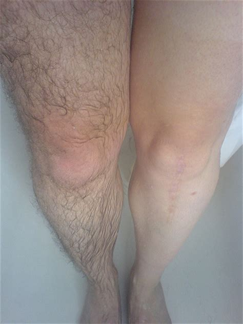iodine and oil rid leg hair picture 9