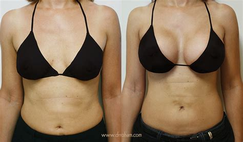 financing for breast augmentation picture 17