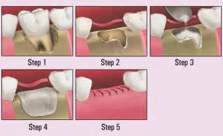 bone grafts and wisdom teeth picture 5