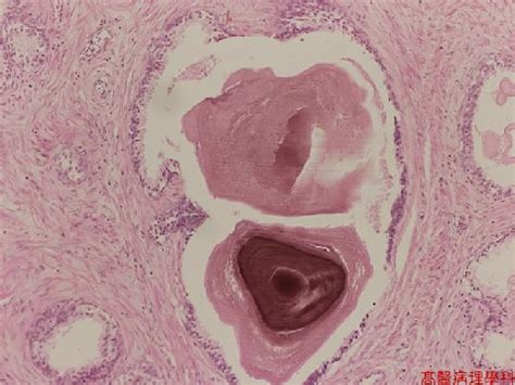 Nodules on the prostate picture 11