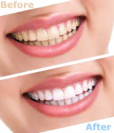 whitening picture 3