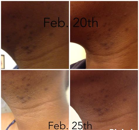 skin changes after abortion picture 9