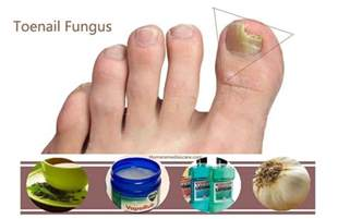 natural remedy nail fungus picture 9