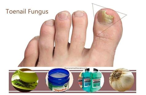 home remedy for toe nail fungus picture 1