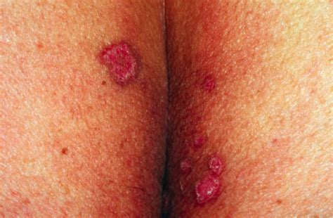 bladder cancer symptons picture 9