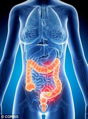 latest colon cancer breakthrough treatments picture 3