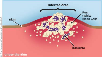 why do i keep getting staph infections picture 10