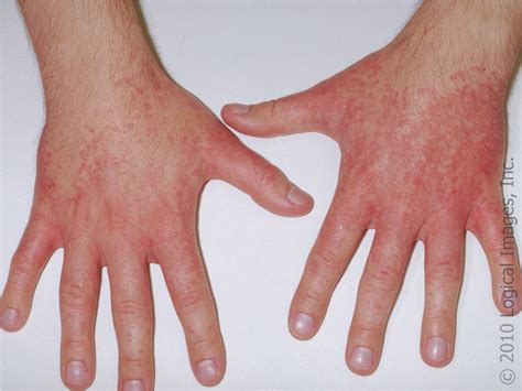 bacterial infections and arthritis picture 9