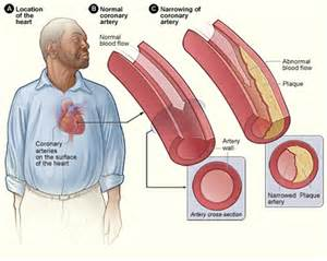 diet and arteriosclerotic heart disease picture 10