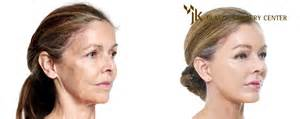 modern of plastic surgery & anti aging picture 17