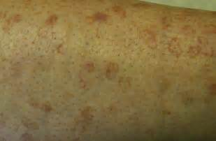 circular red marks skin picture 17
