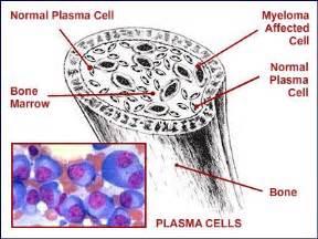 Dexamethasone prostate cancer picture 15