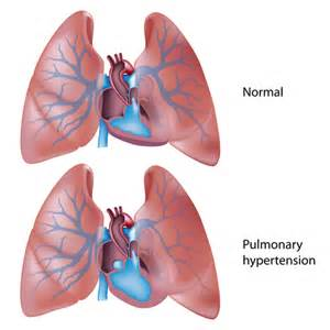 pulmonary hypertension picture 2