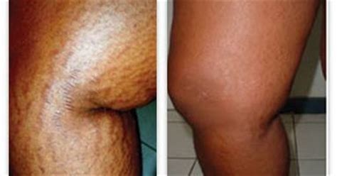 stretch mark icd 9 picture 5