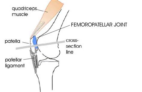 femoral joint pain picture 6