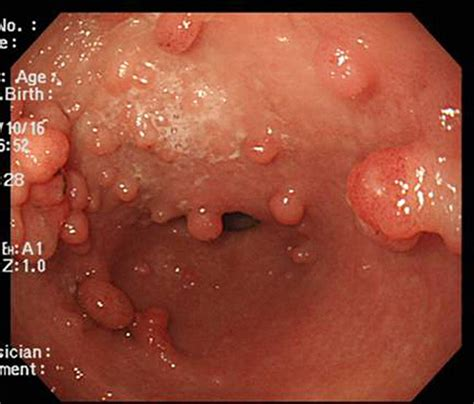 what causes large s pics with hemorrhoids picture 8