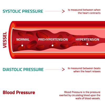 what is blood pressure picture 13