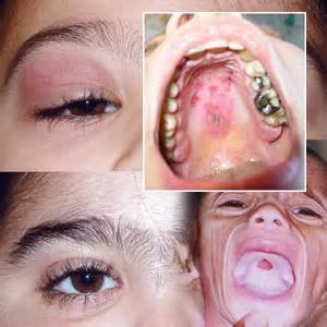 children and skin nodules picture 6