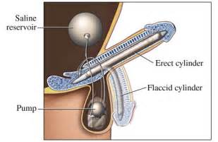 erectile dysfunction surgery picture 5