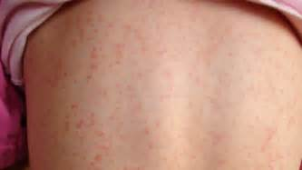 hives and fever picture 3