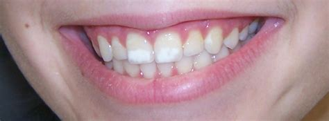 new york tooth whiten picture 9