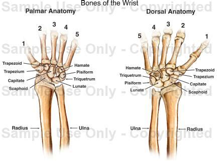causes of hand and joint pain picture 9