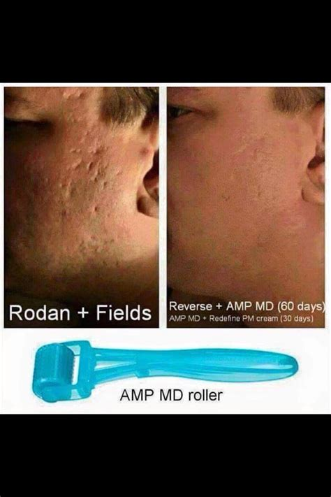 rodan+fields amp pro for stretch marks? picture 6