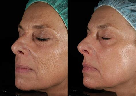 find at less cost the fractional laser for picture 1
