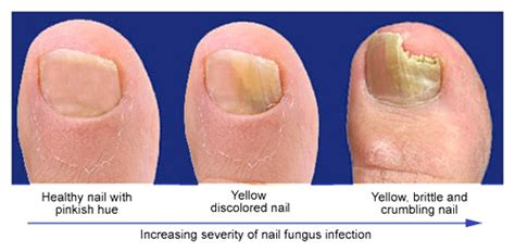 toe nail fungal treatment lasar picture 3