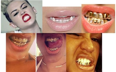 gold teeth in houston texas picture 10