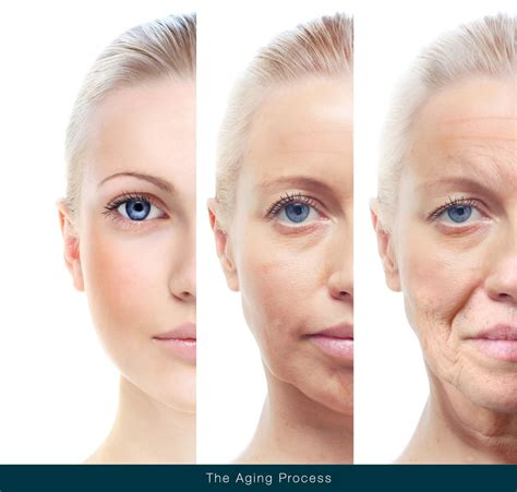 aging process picture 7