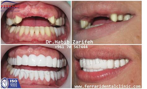 what is venner teeth picture 14