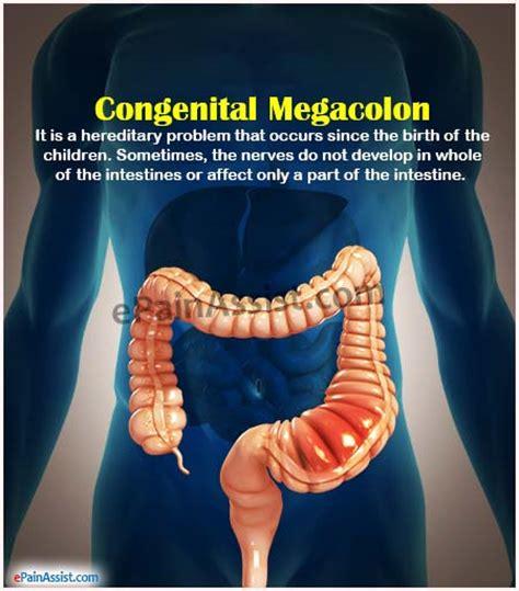 vasculi s colon pain picture 4