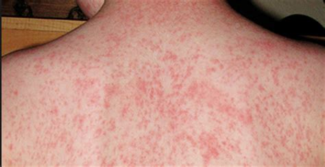 red small circle skin rash picture 5