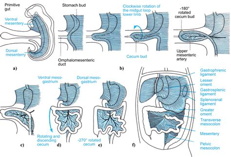 intestinal rotation in s picture 3