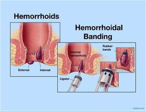 banding of hemorrhoids picture 5