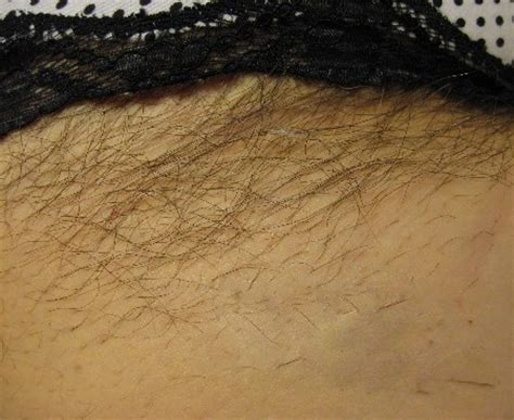 permanent home hair removal picture 5