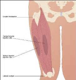 injection site of shots into a muscle picture 18