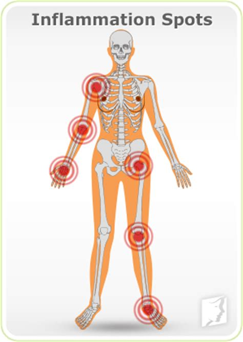 causes of body joint pain inflammation picture 3